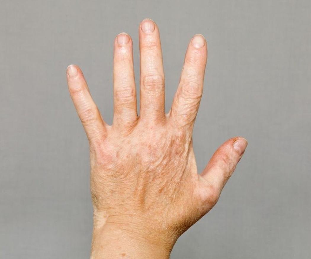 El vitíligo: qué es y cuáles son los síntomas