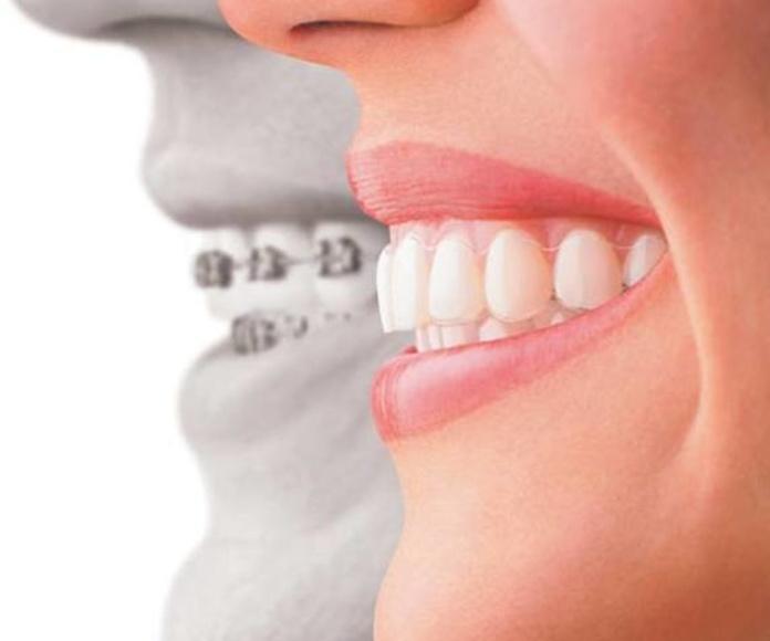 Ortodoncia : Tratamientos de Clínica Dental Sant Roc