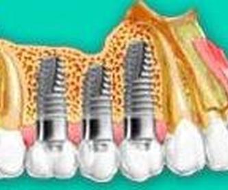 Endodoncia: Especialidades de Insadent - Centro Odontológico