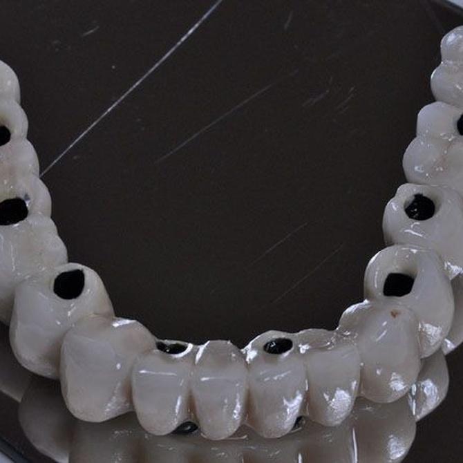¿Qué es un implante dental?