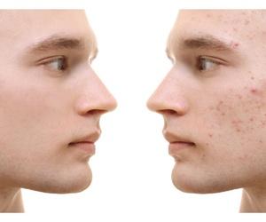 Algunas cuestiones que debes saber acerca del acné