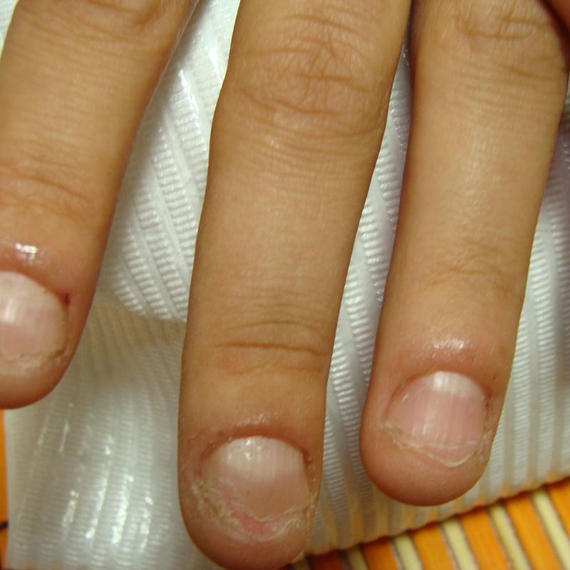 Uñas Mordidas: Servicios de Divinity Body Nails