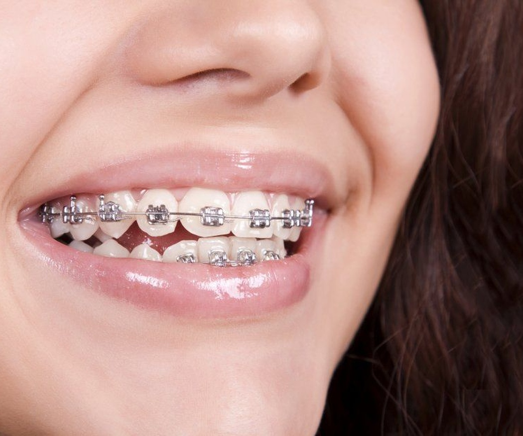 Razones para beneficiarse de la ortodoncia