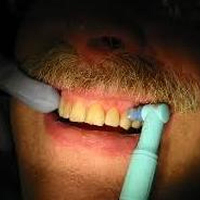Blanqueamiento dental: Servicios de Vicálvaro Dental - Clínica Dental