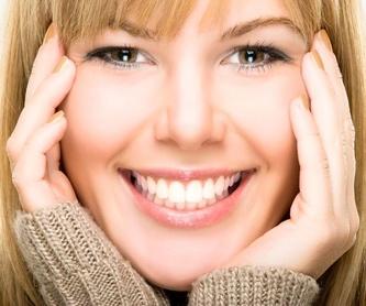 Alargamiento de dientes: Servicios de MAG Clínica Estético Dental
