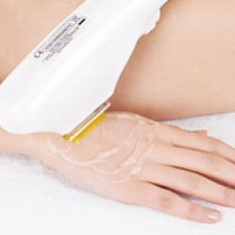 Fotorejuvenecimiento de manos: Tratamientos de Rosana Montiano - Salón de Belleza