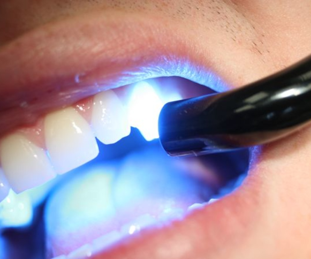 ¿Conoces el composite dental?