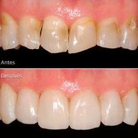 Carillas dentales: Tratamientos de Clínica Dental Fortaña-Giménez
