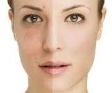 Tratamientos faciales ácido hialurónico