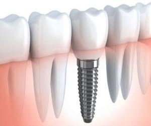¿Cuál es el objetivo del implante dental?
