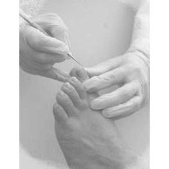 Hiperqueratosis: Servicios de Clínica de Podología y Fisioterapia Thalus