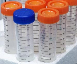 Análisis de paternidad y DAN, incompatibilidad alimentos, pruebas de alergia, marcadores tumorales...