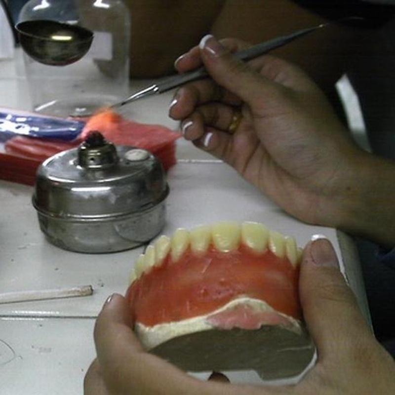 Prótesis dentales: Tratamientos de Angelina Castro Redondo