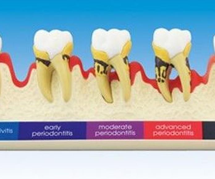 Evolución enfermedad periodontal en molares