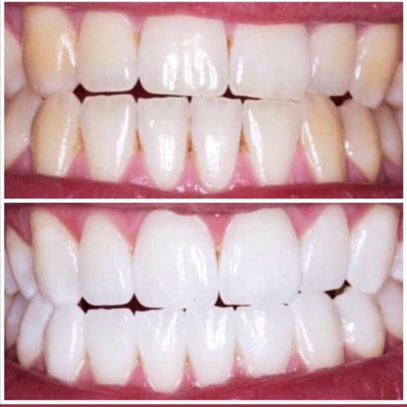 Limpiezas dentales estéticos: Productos de Adictos Tenerife