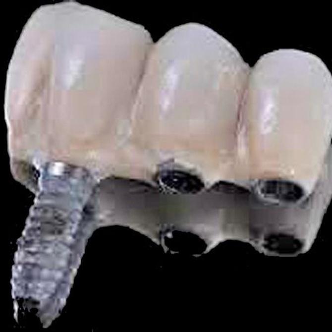 Ventajas de los implantes dentales sobre los puentes