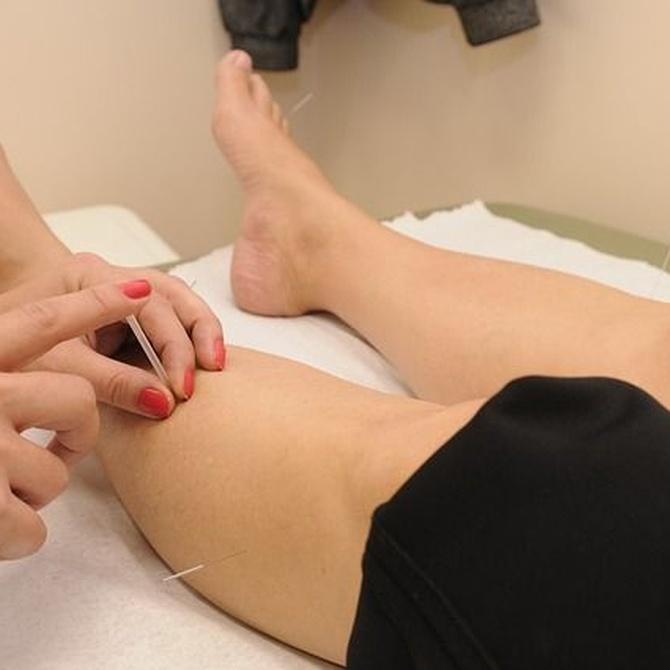 Beneficios de la acupuntura