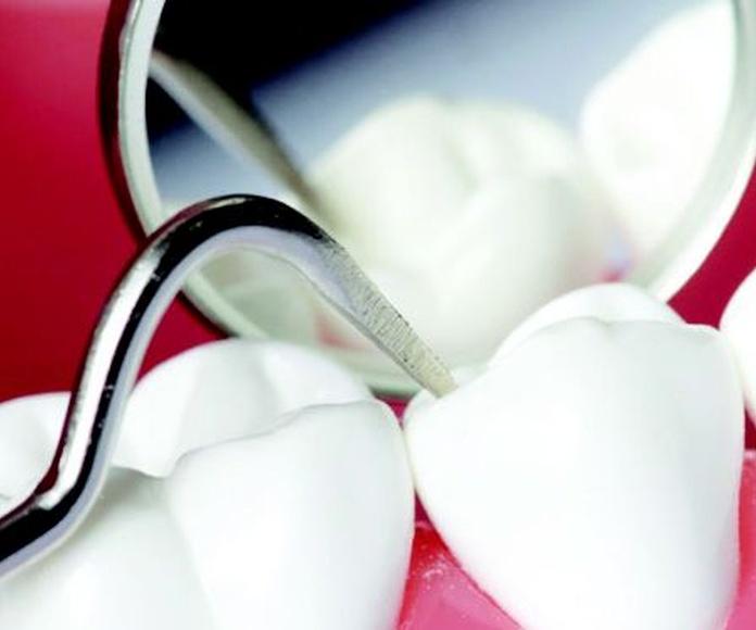 Periodoncia: Tratamientos de Ipsum Centro Odontológico