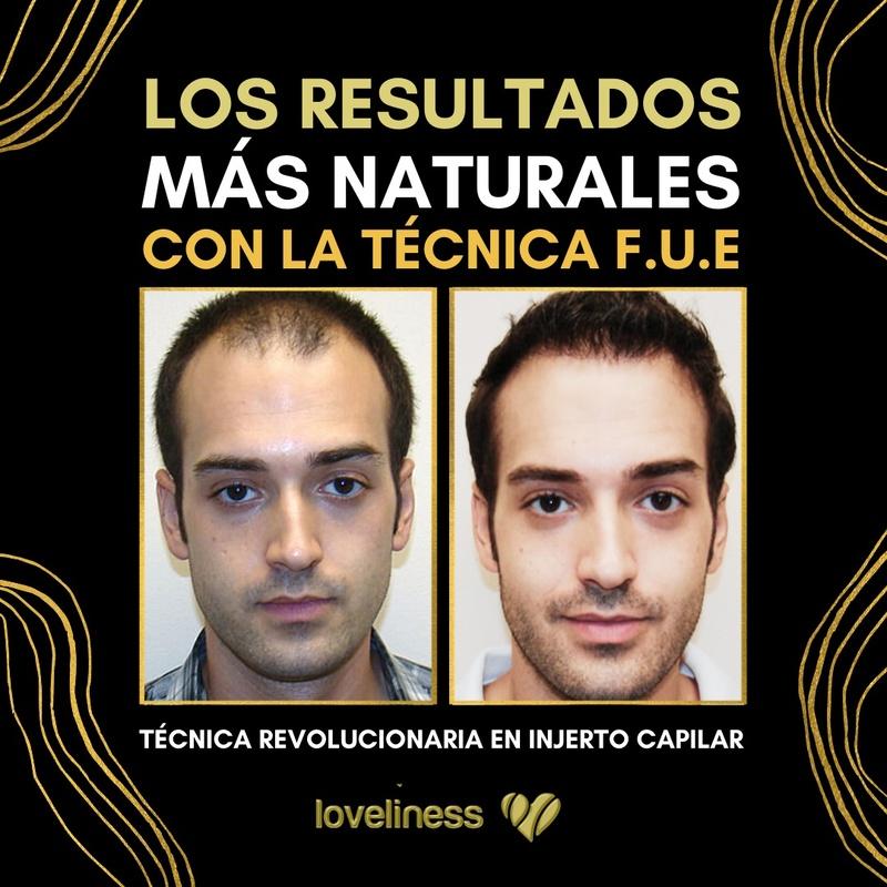 Injertos capilares: Tratamientos de estética de Clínica Estética Loveliness