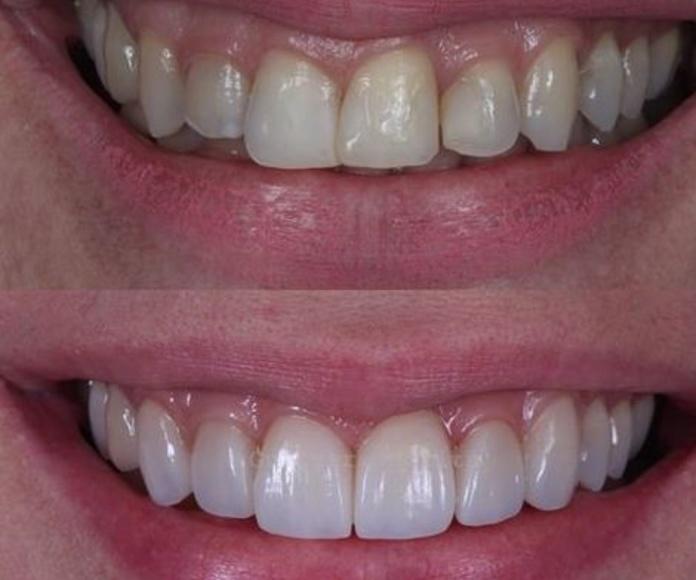 Estética dental: Servicios & Tratamientos de Eurodent Clínica Dental