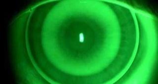 Lentes de contacto en córneas irregulares