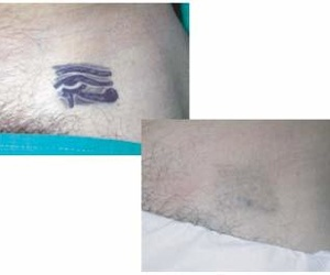 Tratamientos con botox en L'Eixample, Barcelona | Centro Dermatológico Dr. Javier Bassas