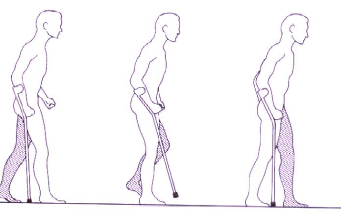 uso del baston.png