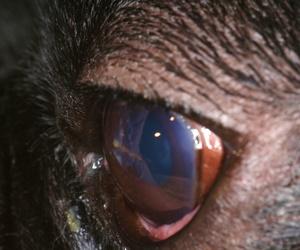 Cuerpo extraño en ojo