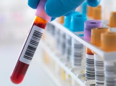 Un análisis de sangre predice las recaídas en cáncer de mama