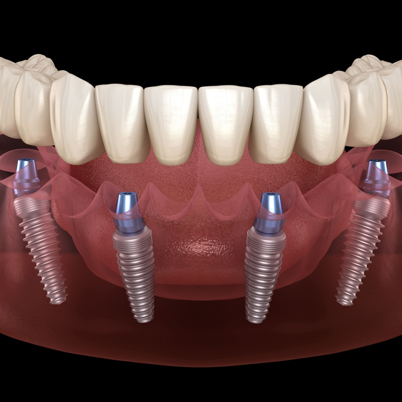 Implantes: Servicios de Sagadent Milenium