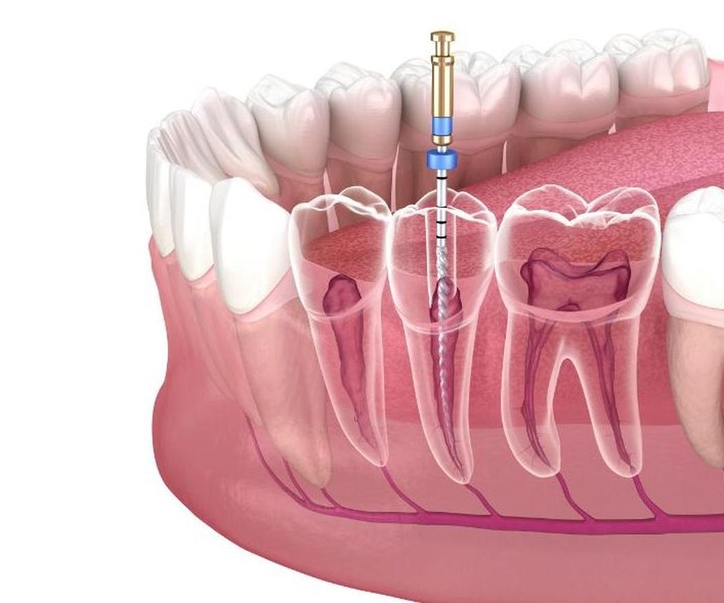 Endodoncia: tipos y algunas precisiones