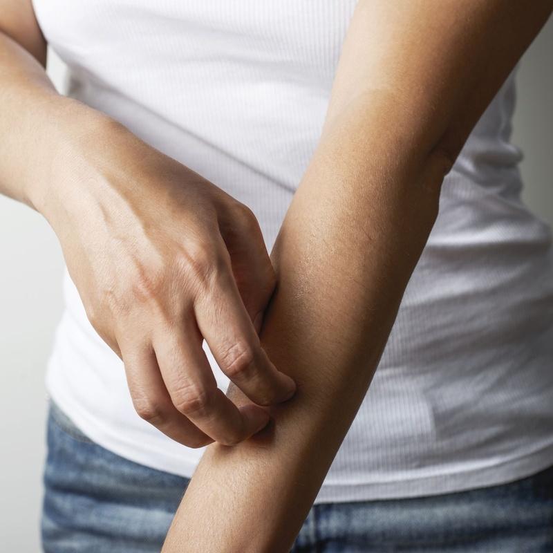 Picor: Dermatología y Dermoestética de Dermatología Socorro Fierro