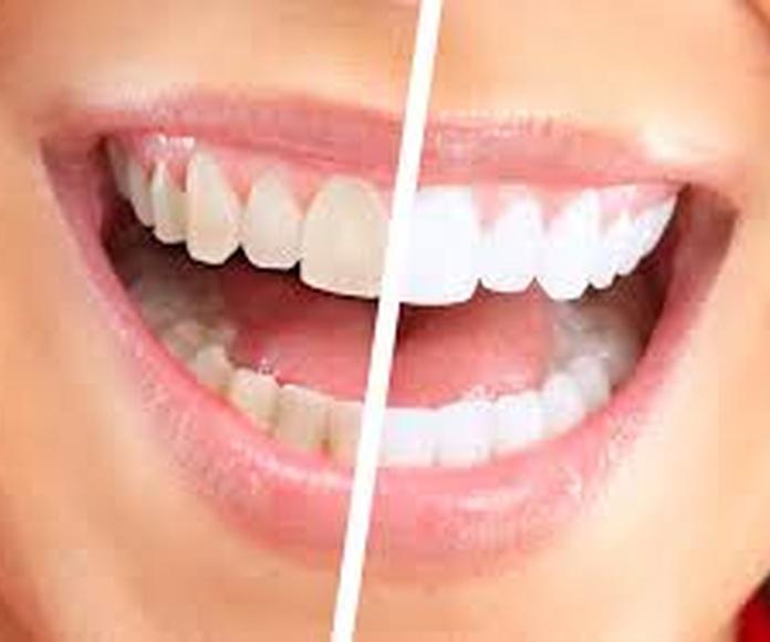 Blanqueamiento dental: Servicios de Clínica Dental Begoña Irigaray
