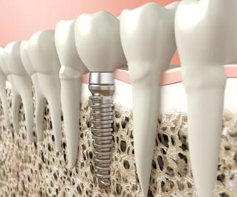 Prótesis dental: Odontología de Clínica Dental Alai - Zumarraga