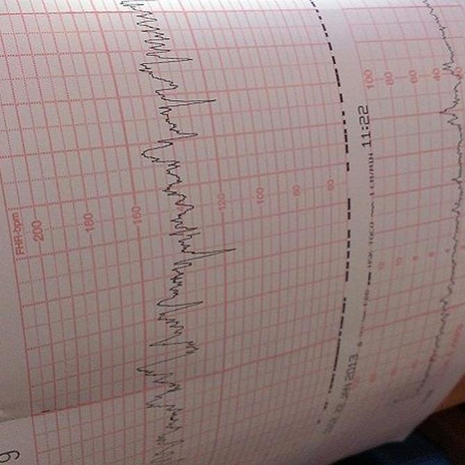 Preparación para una ecografía-doppler