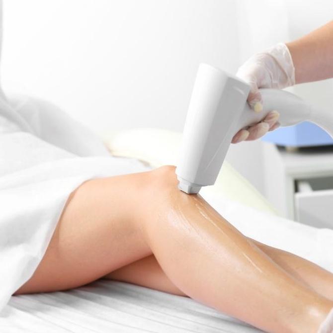 ¿Por qué es mejor la depilación láser que otros tratamientos?