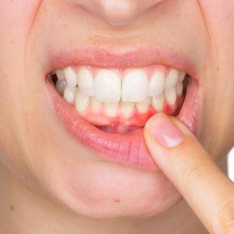 PERIODONCIA: Tratamientos de Clínica Dental Santa Eulàlia