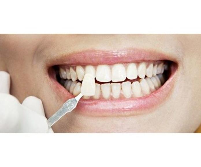 Estética dental: Tratamientos de Dential