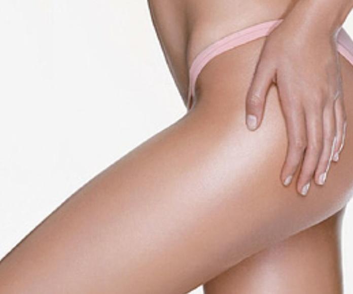 Tratamiento Anticelulítico: Tratamientos y Productos  de Chic Beauty Center