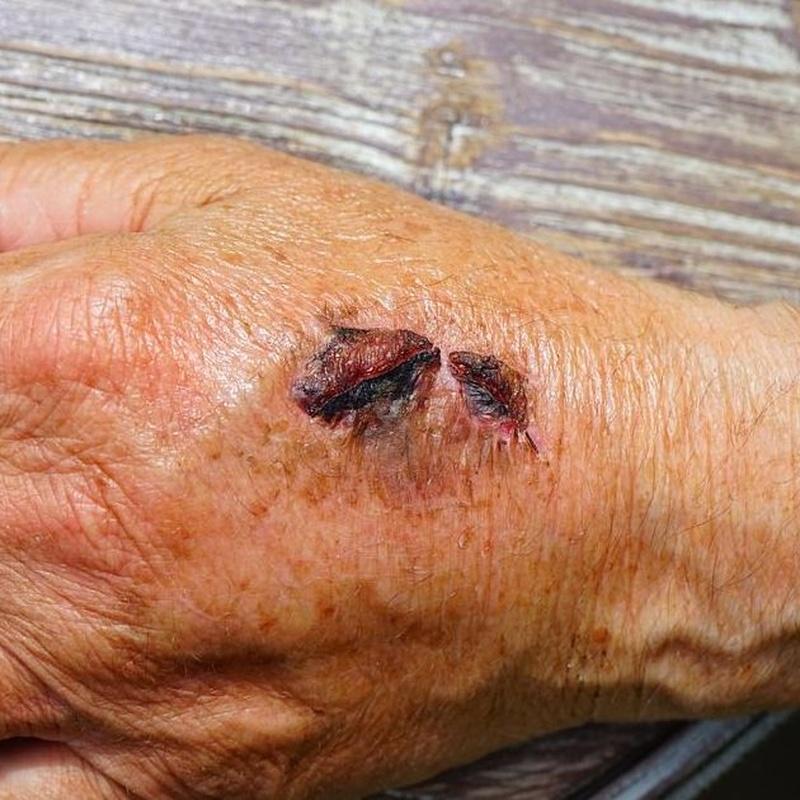 Tratamiento de úlceras dérmicas
