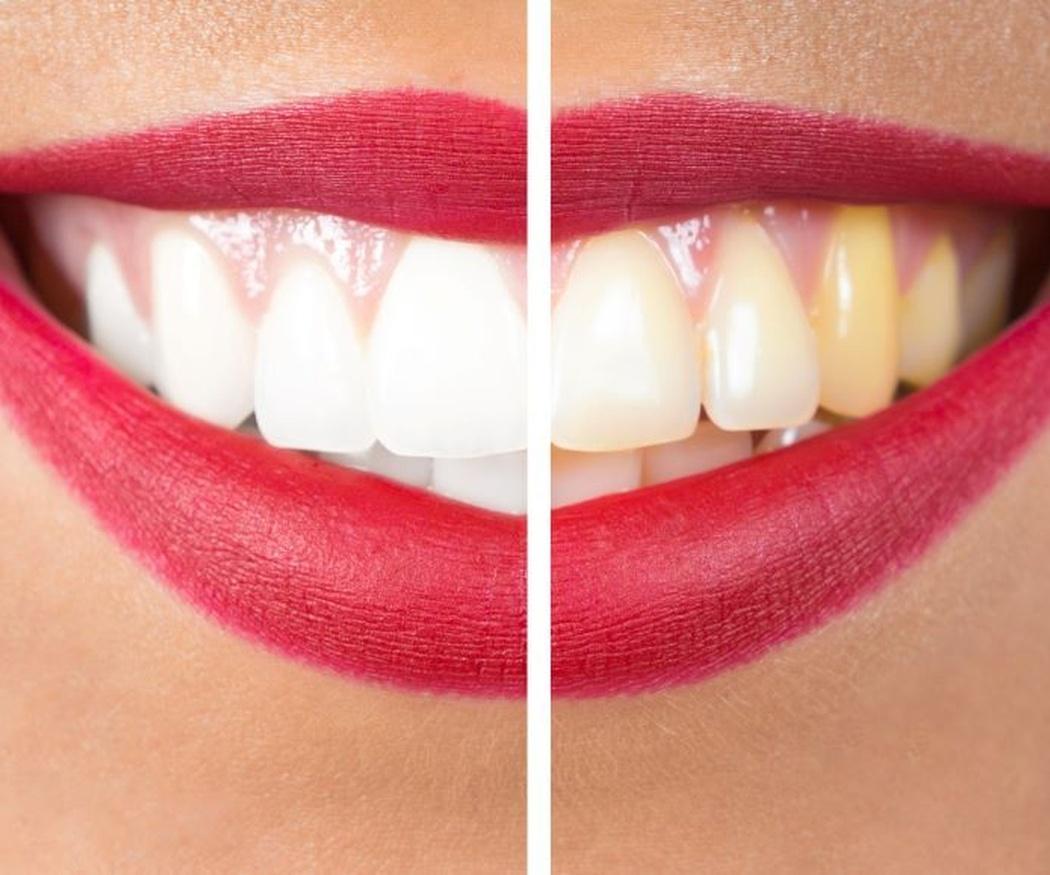 ¿Conoce los beneficios del blanqueamiento dental?