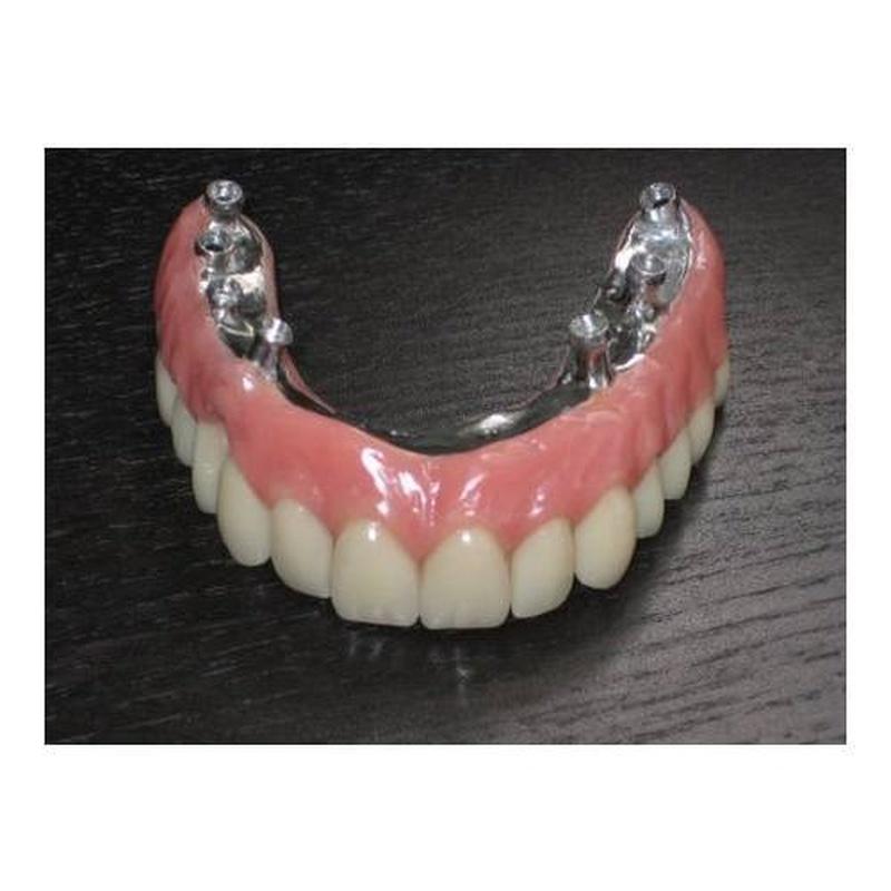 Híbrida: Productos y Servicios de Renzo Laboratorio Dental