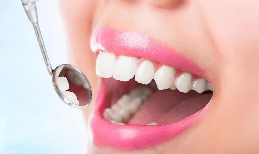 Beneficios de ir al dentista