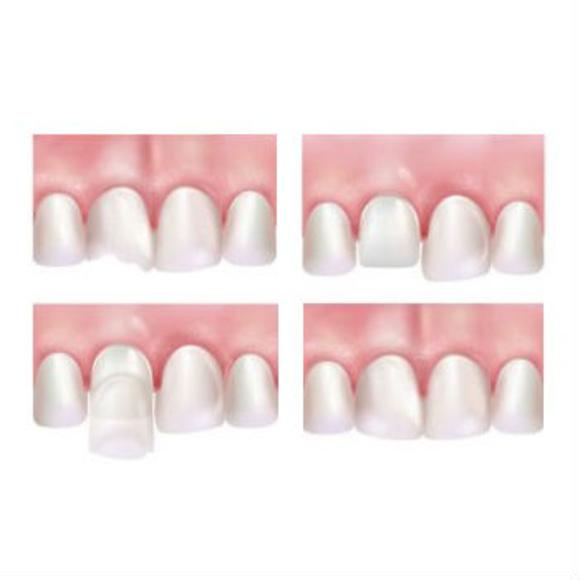 Carillas de porcelana y fundas de cerámica : Especialidades  de Clínica Dental Baviera