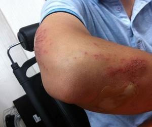 Tratamiento gratuïto para lesiones de Accidentes de Tráfico