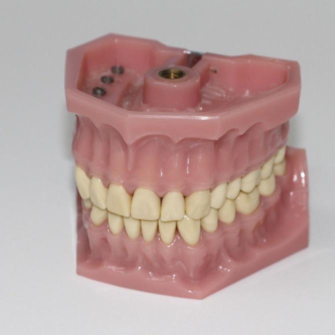 Causas de los cambios de color en dientes