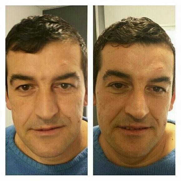 Radiofrecuencia facial: Servicios de Salón de Belleza Nicol's