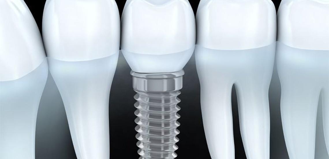 Implantes dentales en Gava