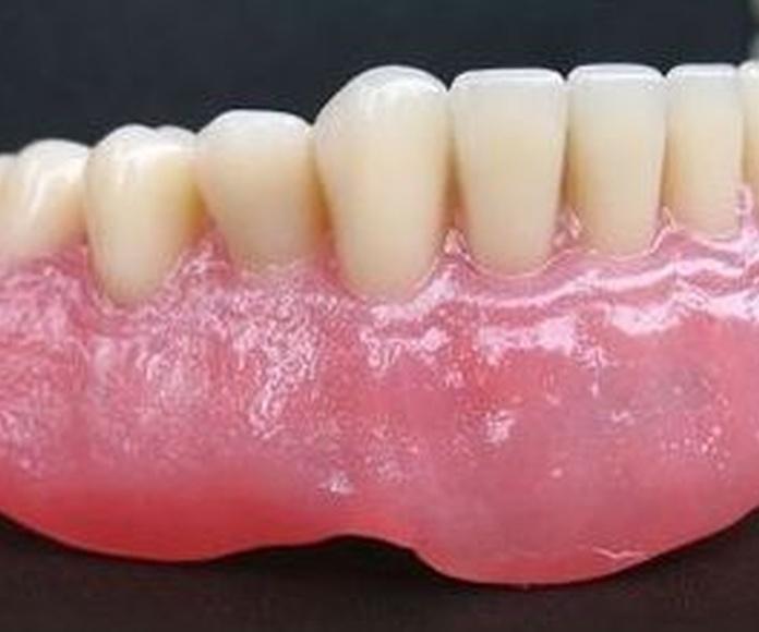 Prótesis removible: Servicios de Ángel Dueñas Laboratorio Dental