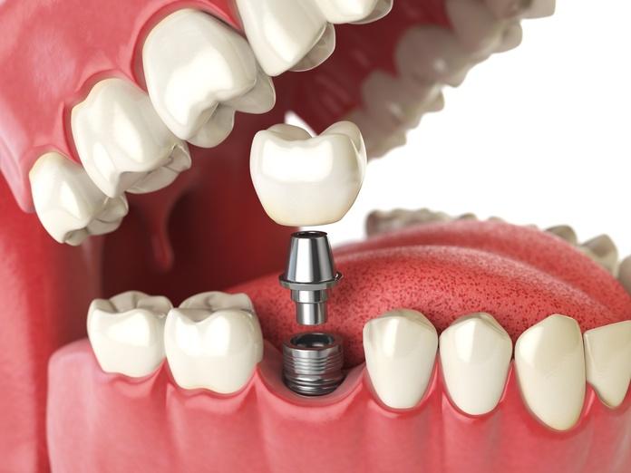 Colocación de implantes con poco hueso: Tratamientos de Clínica dental Vall Hebrón